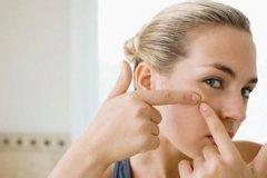 四个治疗痤疮的方法
