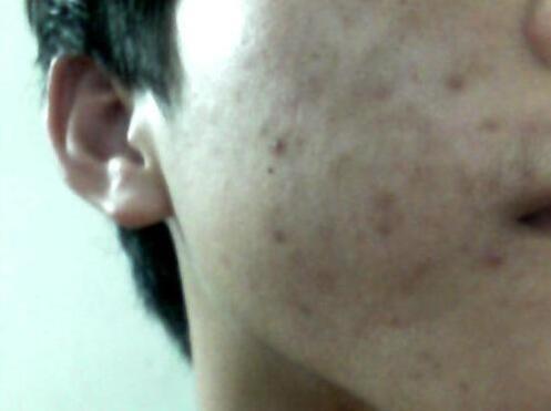 美白淡斑,去痘印能修复吗?痘印如何消除?