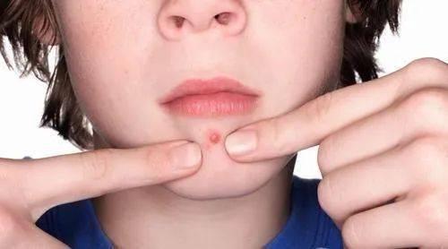 月经期间频繁长痘到底是出了什么问题?